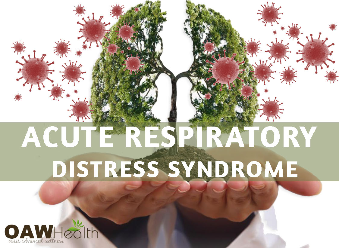 Acute Respiratory Distress Syndrome – ARDS