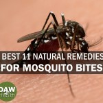 Best 11 Natural Remedies for Mosquito Bites
