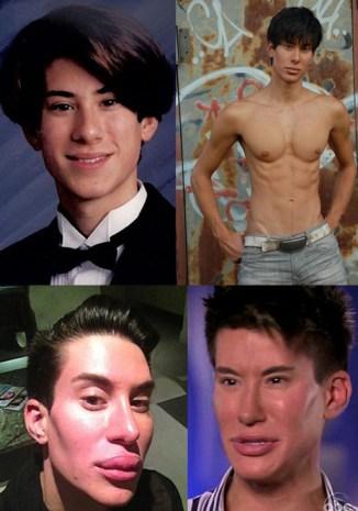 Homem faz 90 cirurgias plásticas para ficar parecido com Ken
