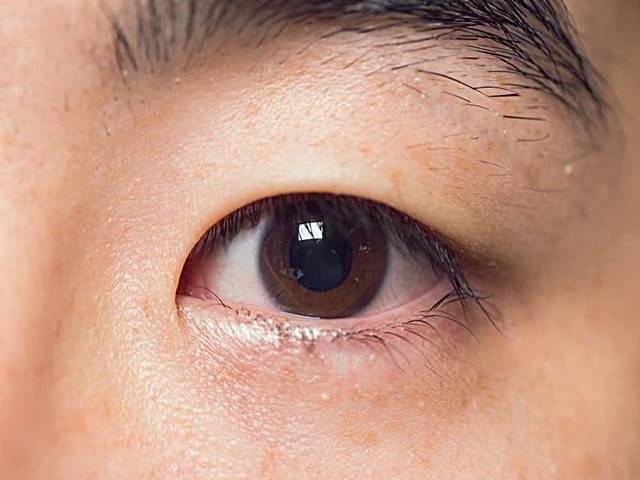 12 Obat Mata Bintitan di Apotik & Alami Yang Paling Ampuh