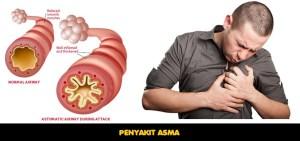 Pengobatan Penyakit Asma Alami