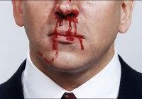 Mimisan Hidung Berdarah