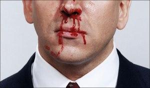 Omat Mimisan Hidung Berdarah Alami
