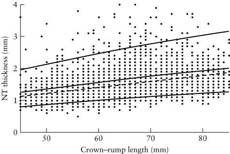 The CUSUM test applied in prospective nuchal translucency