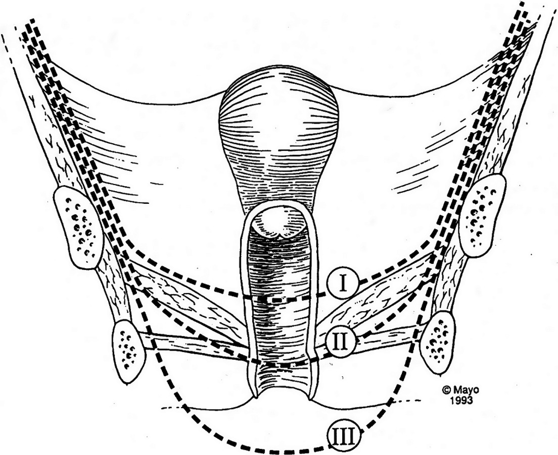 Pelvic Exenteration For Recurrent Gynaecological Cancer