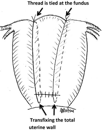Uterine compression sutures for postpartum hemorrhage: an