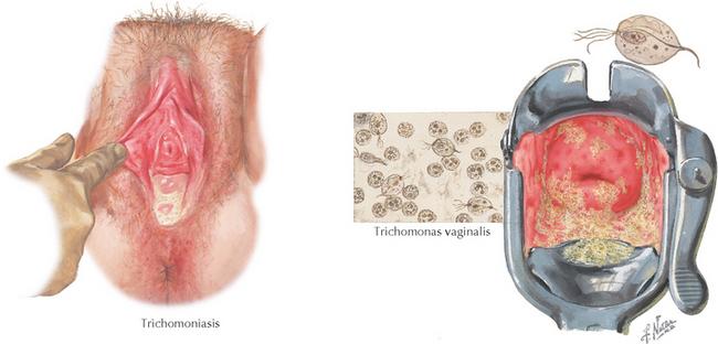 papiloma trichomonas