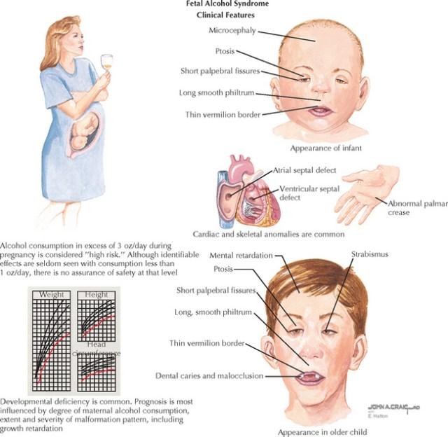 Fetal Alcohol Syndrome | Obgyn Key
