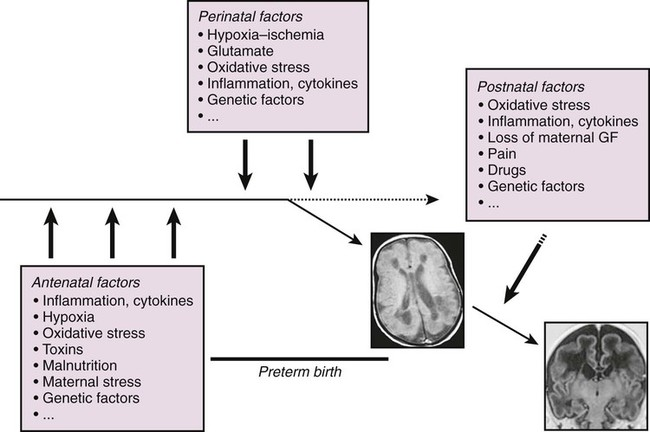 White Matter Damage and Encephalopathy of Prematurity