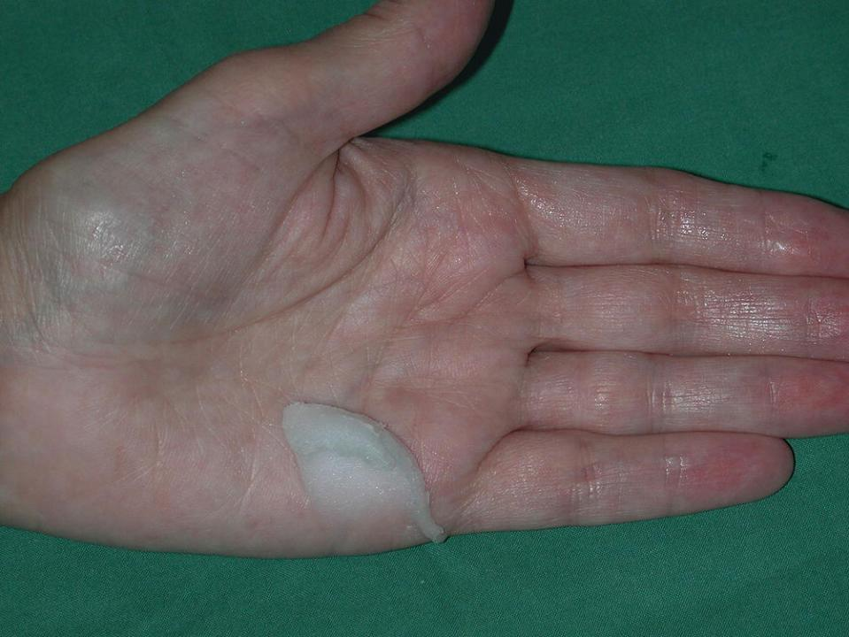 Photo of hand with emulsifying ointment.