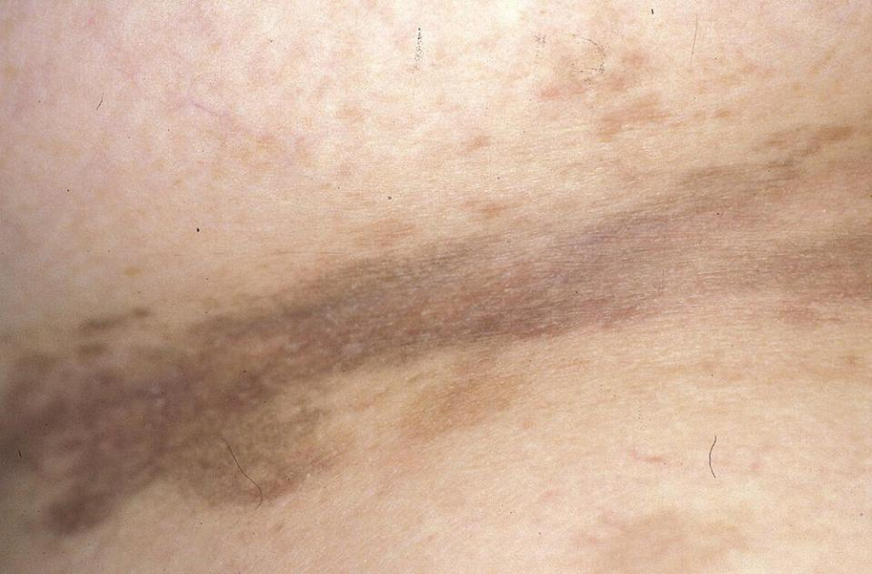 Photo displaying post-inflammatory hyperpigmentation in inguinal fold on skin.