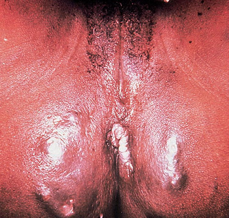 Photo displaying vulva and butt of the patient with Lymphogranuloma venereum: sinuses.