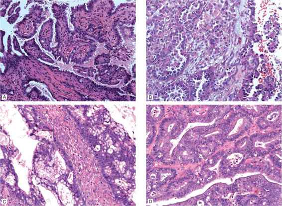 Epithelial Ovarian Cancers Low Malignant Potential And Non Serous Ovarian Histologies Obgyn Key