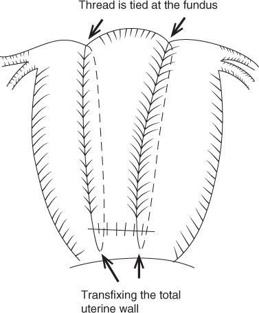 Diagram of the Hayman suture - Modified B-Lynch suture displaying two separate sutures through the lower uterine segment with arrows indicating the thread is tied at the fundus and transfixing the total uterine wall.