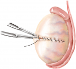 Chapter 14 – Surgical Sperm Retrieval Methods