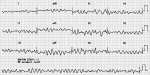 30 – Chest Pain in a Pregnant Patient