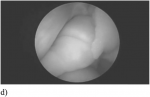 Chapter 8 – Assessment of Fallopian Tube Patency