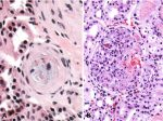 Biopsy in Pregnancy: Risks, Benefits, Pathologic Findings, and Illustrative Examples