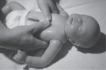 Chapter 36 – Resuscitation of the Newborn