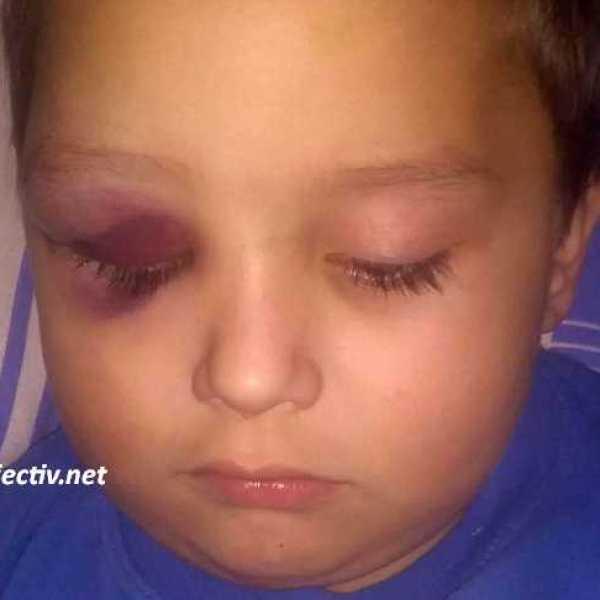 Ialomița: Educatoare acuzată de neglijenţă, după ce un copil s-a accidentat la grădiniţă