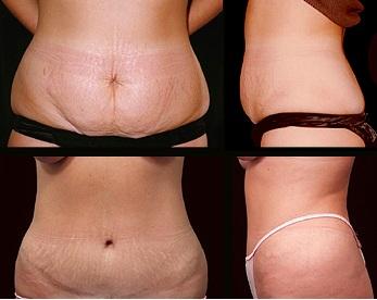 Un bodylift est une chirurgie esthétique et réparatrice qui corrige le relâchement cutané après un régime important ou une intervention de chirurgie bariatrique