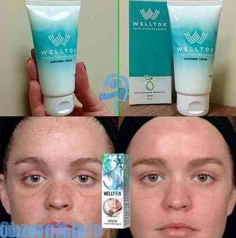 La crème Welltox pour éclaircir la peau