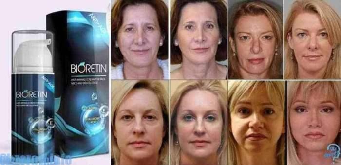 Crema de bioretin pentru eliminarea semnelor de îmbătrânire a pielii timp de o lună