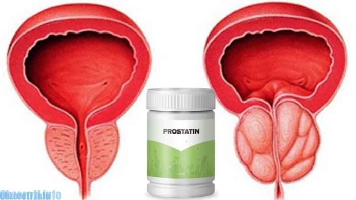 Prostatin capsule pentru tratamentul prostatitei