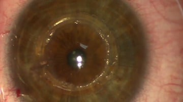anello corneale 340