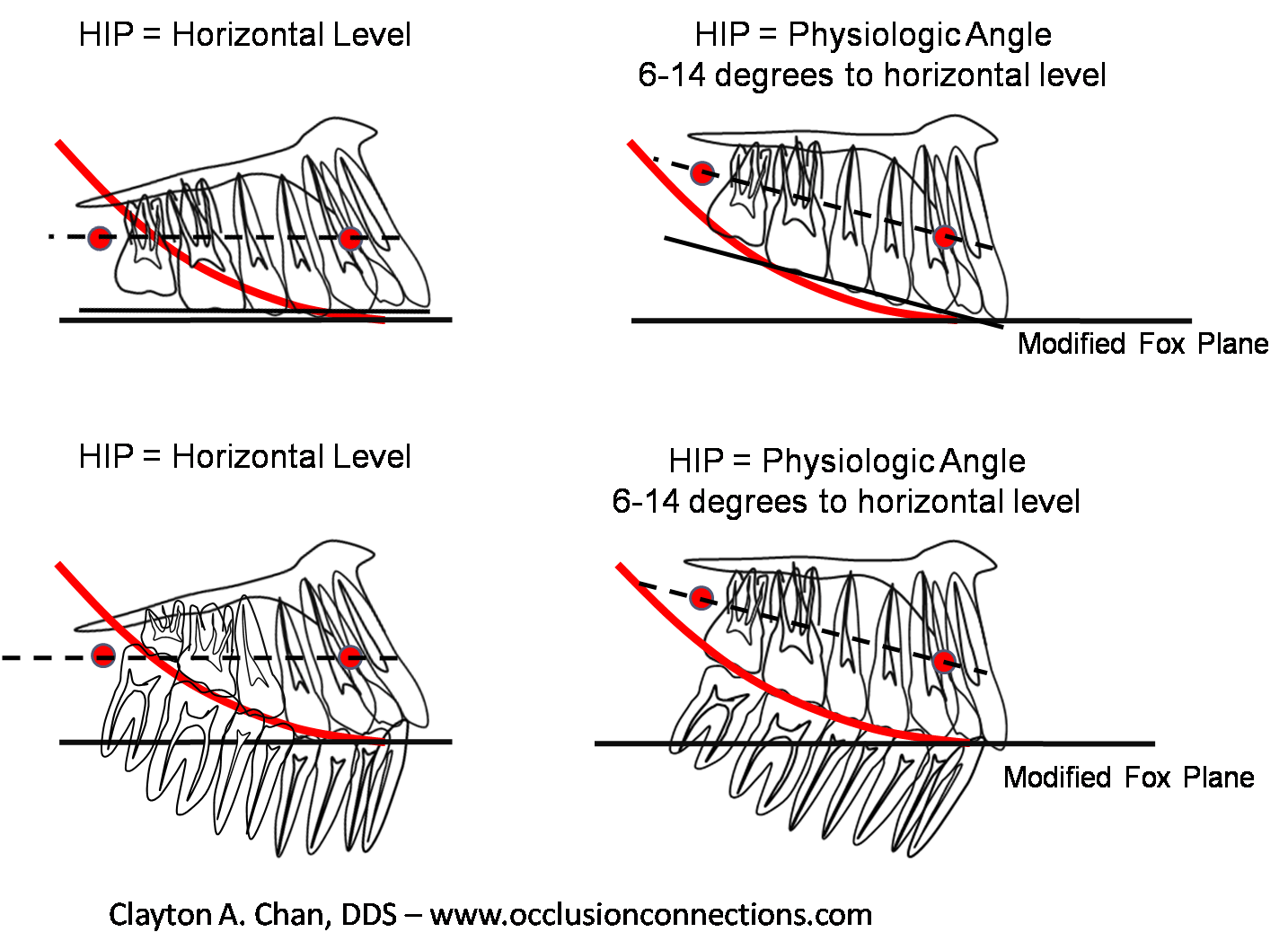 Related Keywords Amp Suggestions For Occlusal Plane
