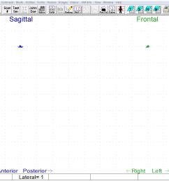 oc abnormal normal swallow scan 6 [ 1385 x 984 Pixel ]