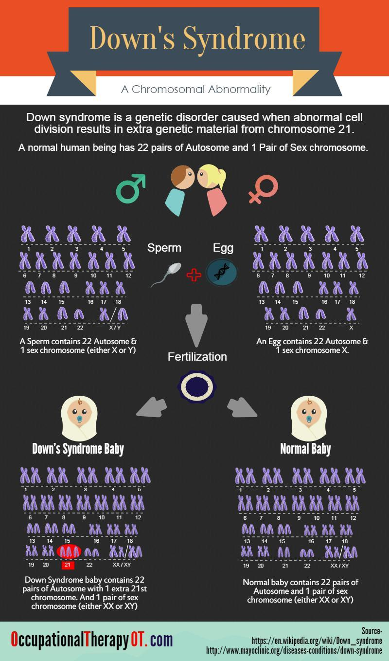 down-syndrome-infographic