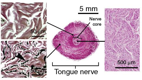Figure 3. Nerves (center image) running through the VGB and tongue in rorqual whales are made up of nerve fiber bundles (right image) in the inner core, surrounded by an inner wall of collagen (top left image) and an outer wall of elastin (black spots with the arrow pointing to them, lower left image).