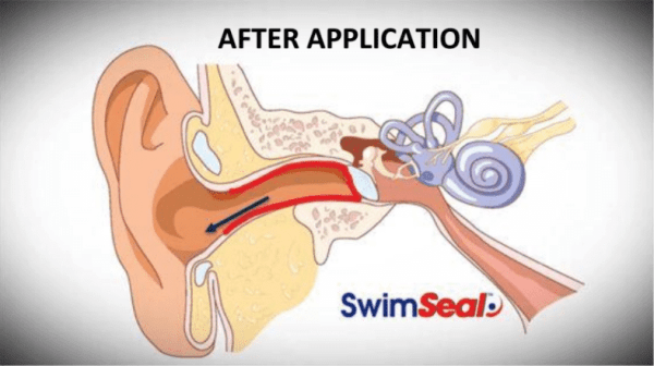 SwimSeal prevents swimmers ear