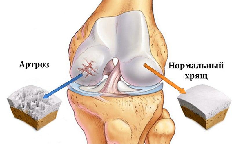 Артроз коленного сустава протезирование асд свечи при воспалении сустава