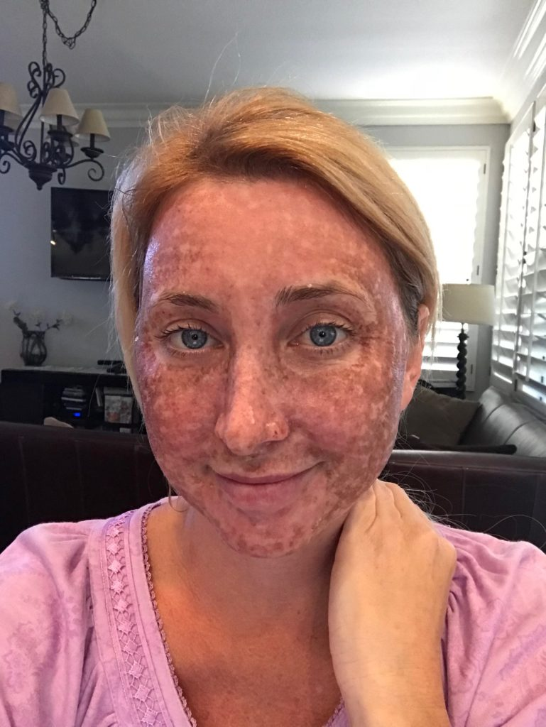 Darkening of skin after a C02 Laser at CosmetiCare