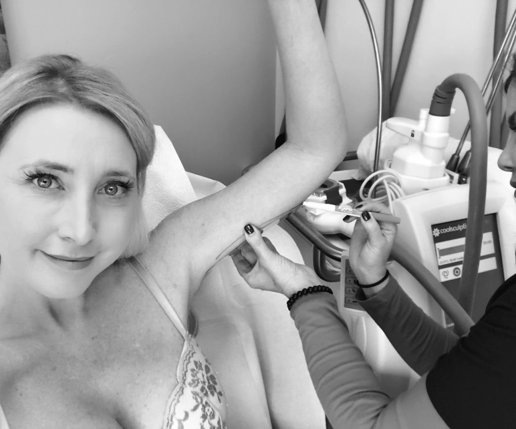 Measuring Arms for Coolsculpting at CosmetiCare