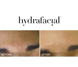 Before and After Hydrafacial Dark Spots