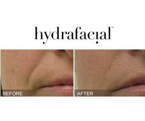 Before and After Hydrafacial Smile Line