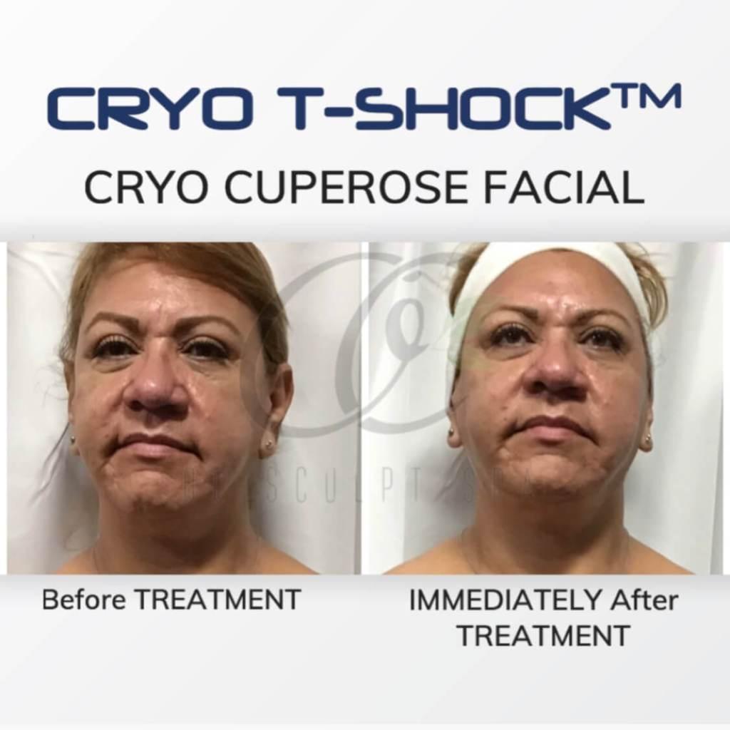 Cryo T Shock Cuperose Facial for Rosacea