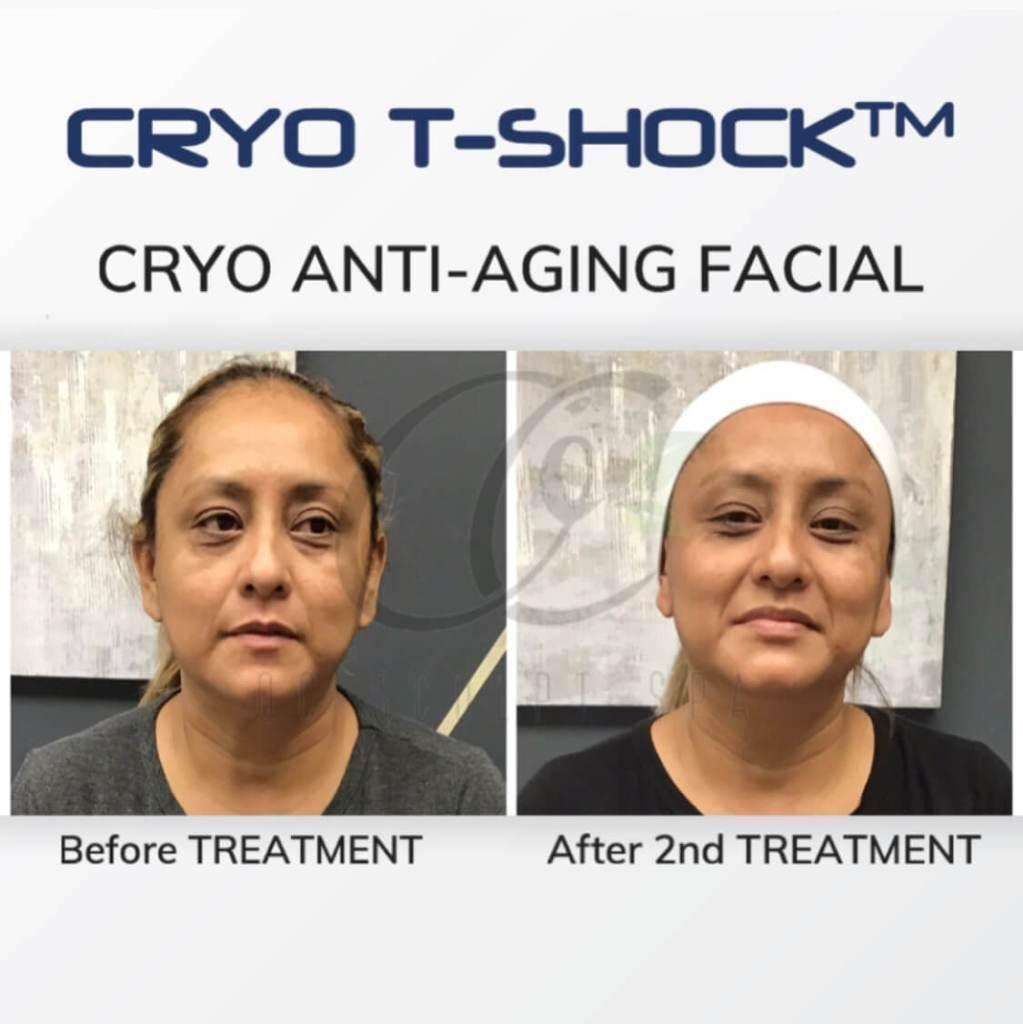 Cryo T Shock Anti Aging Facial for Dark Undereye
