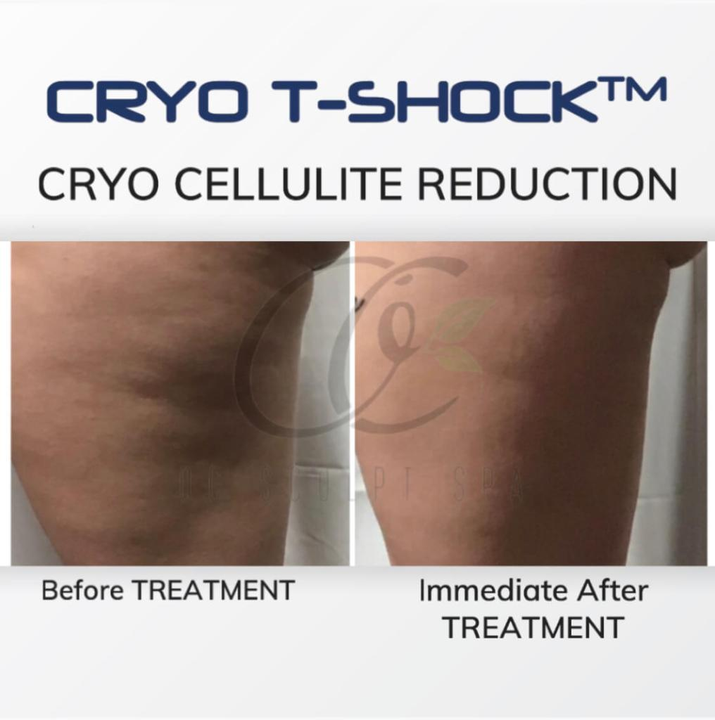 Cryo T Shock Sclerotic Cellulite Treatment