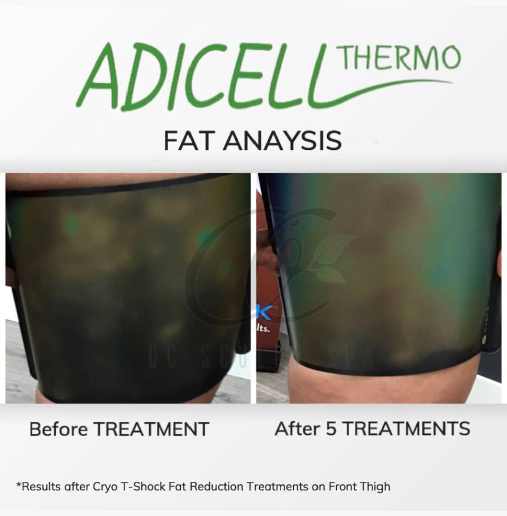 Adicell Results Measuring Fat Content and Type After Cryo T Shock Fat Reduction Thighs