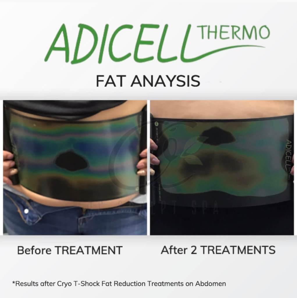 Adicell Results Measuring Fat Content and Type After Cryo T Shock Fat Reduction Stomach and Abdomen