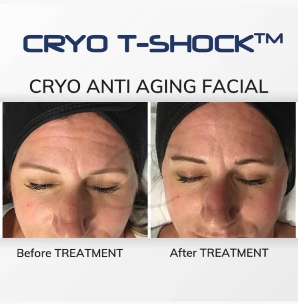Cryo T Shock Anti Aging Facial for Forehead lines and collagen