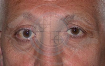 5. Tumore ghiandola lacrimale