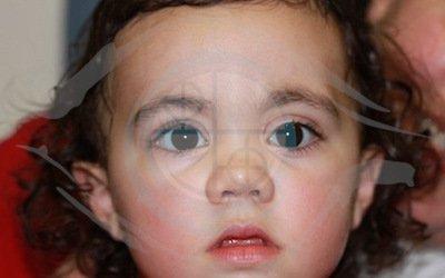 Caso 2. malformazione vascolare congenita. postoperatorio