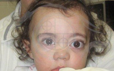 Caso 2. malformazione vascolare congenita. preoperatorio