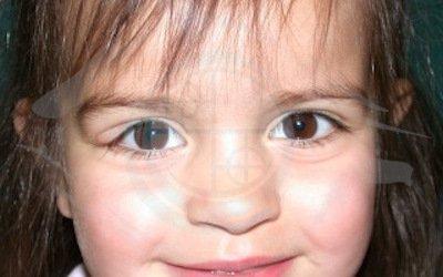 Caso 4. cisti dermoide. preoperatorio, visibile gonfiore palpebra occhio destro