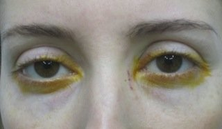 Ostruzioni Vie Lacrimali Adulto 3